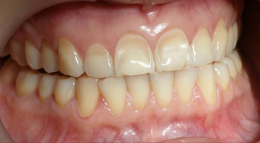 The Lie About Baking Soda And Lemon Juice Teeth Whitening News