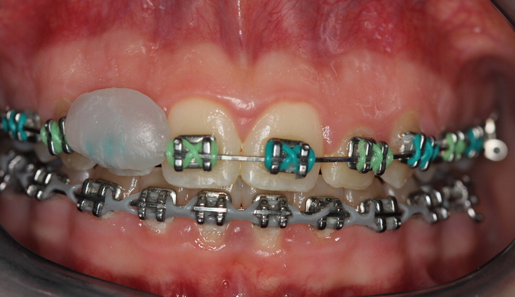 What is orthodontic wax | News | Dentagama