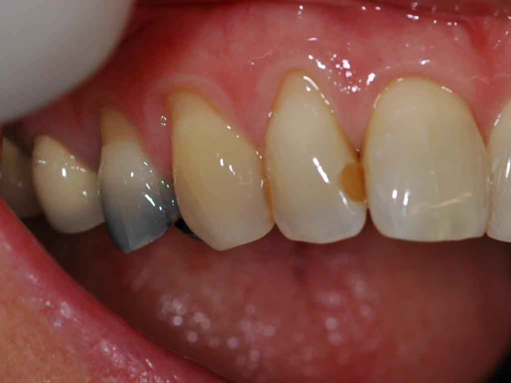 Reasons For Tooth Discoloration News Dentagama