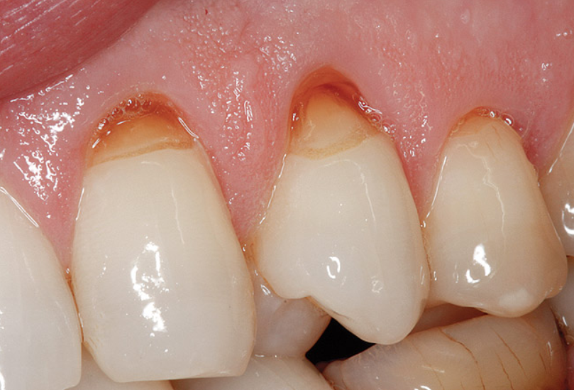 what is the difference between dental attrition