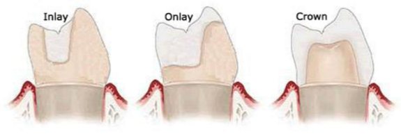 What is the difference between inlay, onlay, overlay and pinlay ...
