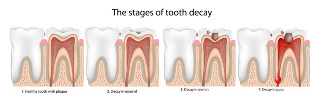The 5 Stages of Tooth Decay | News | Dentagama