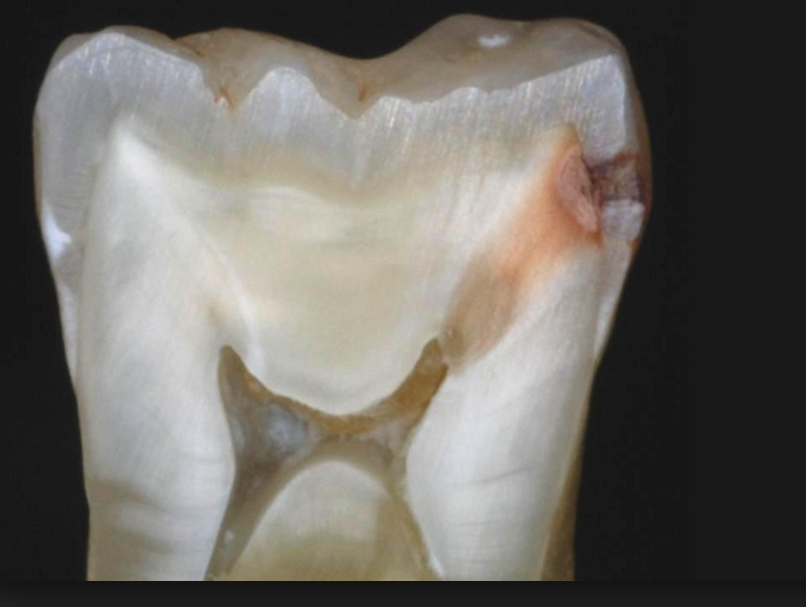 Image result for cross section of tooth with cavity compared to xray