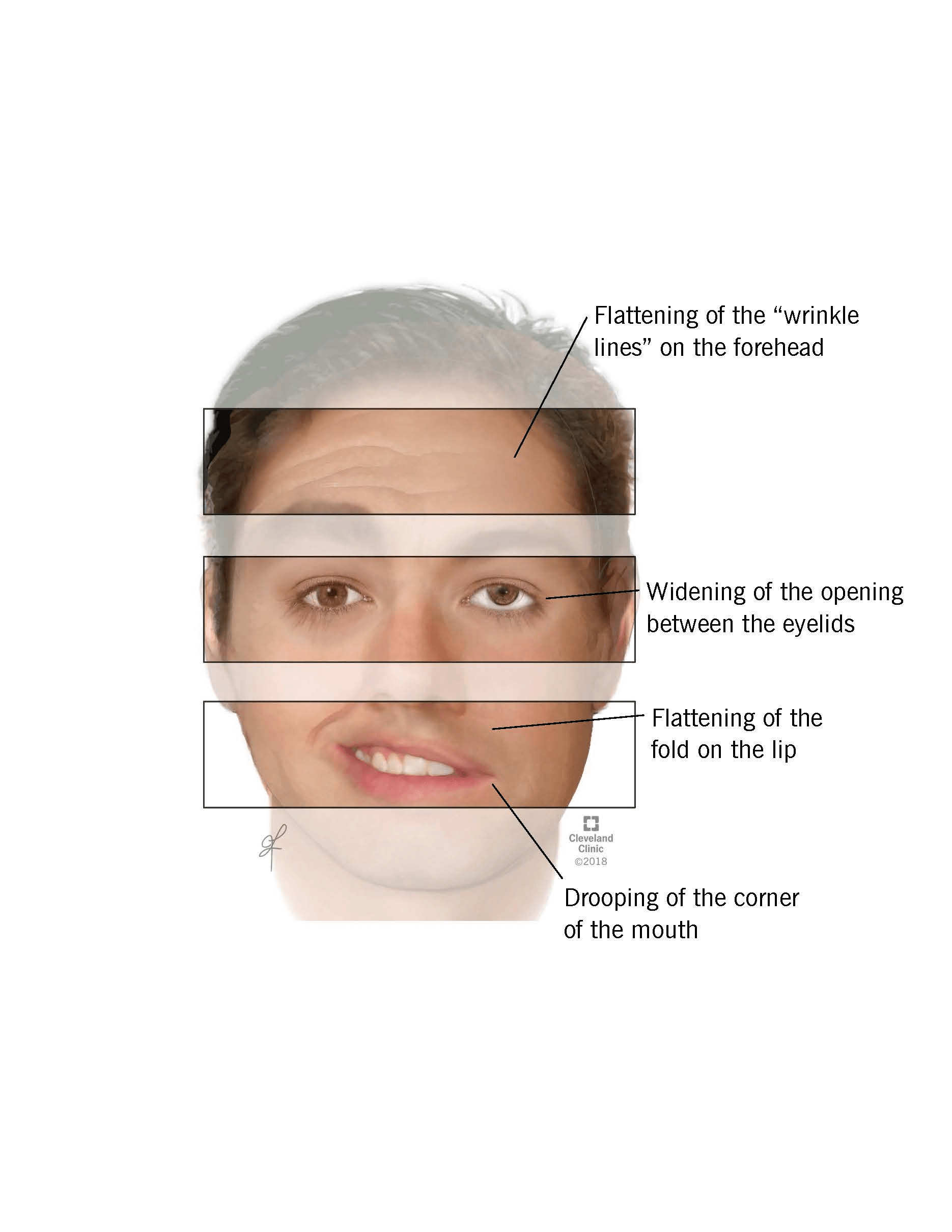 Bell s palsy facial injury