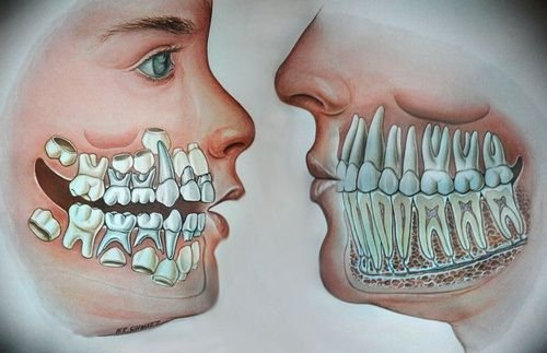 how many teeth in an adult mouth