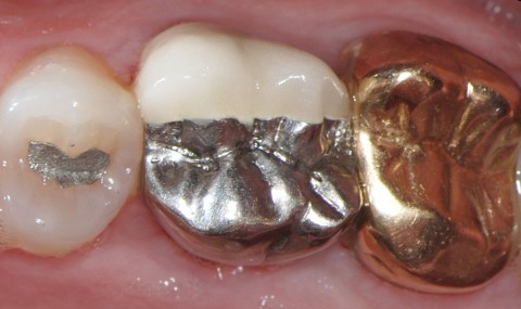 oral galvanism symtom