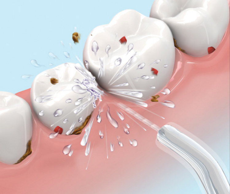 interdental cleaning dental floss vs water pick vs interdental brushes news dentagama. Black Bedroom Furniture Sets. Home Design Ideas