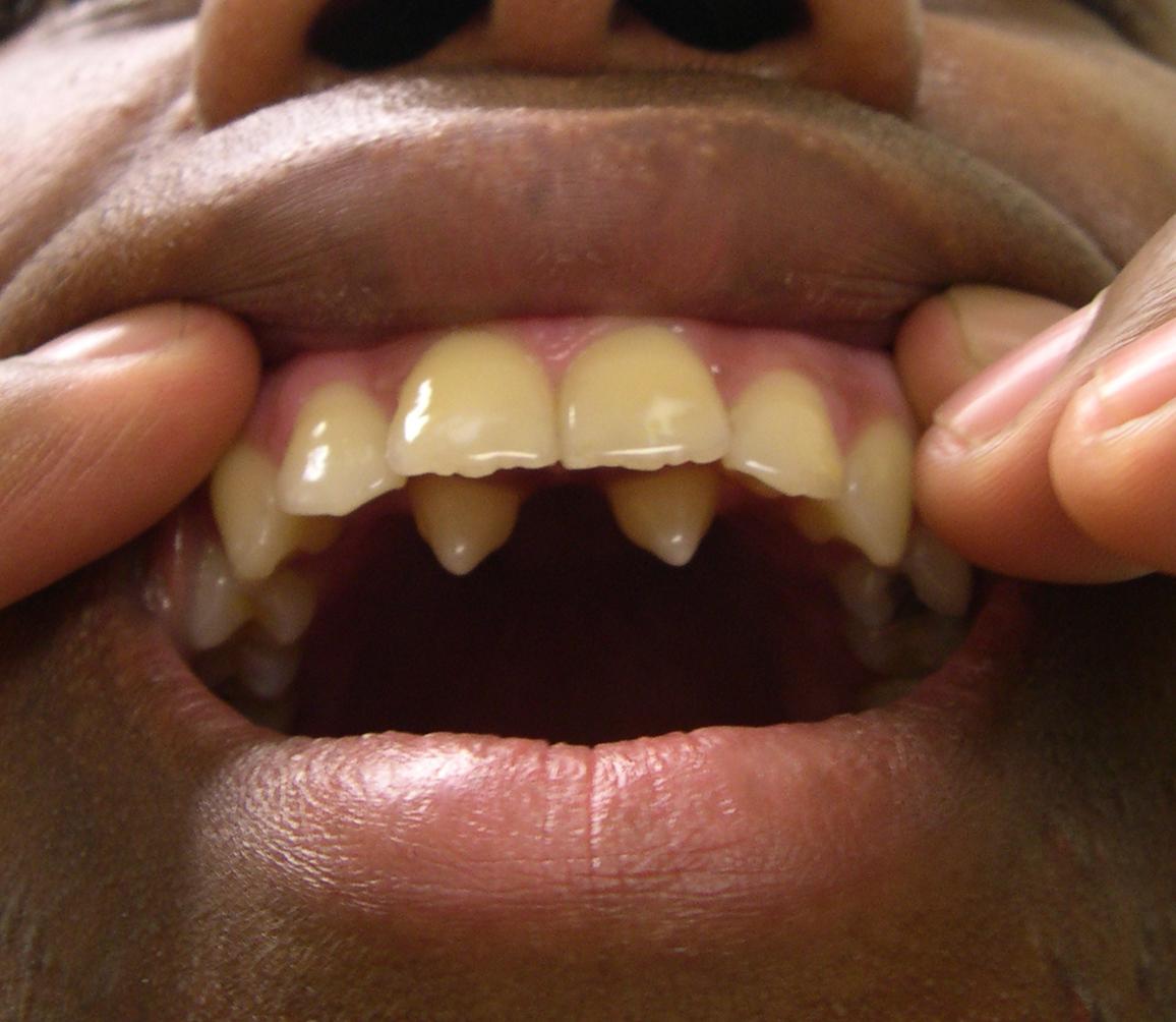 supernumerary teeth news dentagama. Black Bedroom Furniture Sets. Home Design Ideas