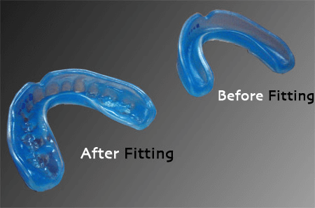 Boil And Bite Mouthguard Before And After Fitting In The Mouth