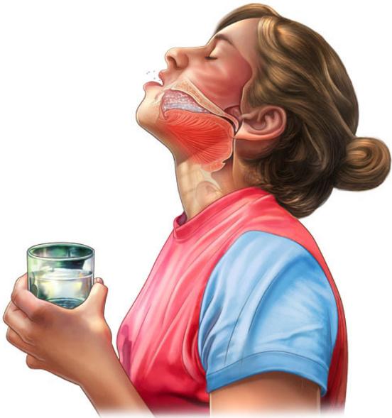 Как сделать содовый раствор для полоскания горла при ангине