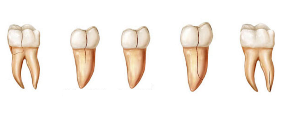 how to tell if tooth infection is spreading