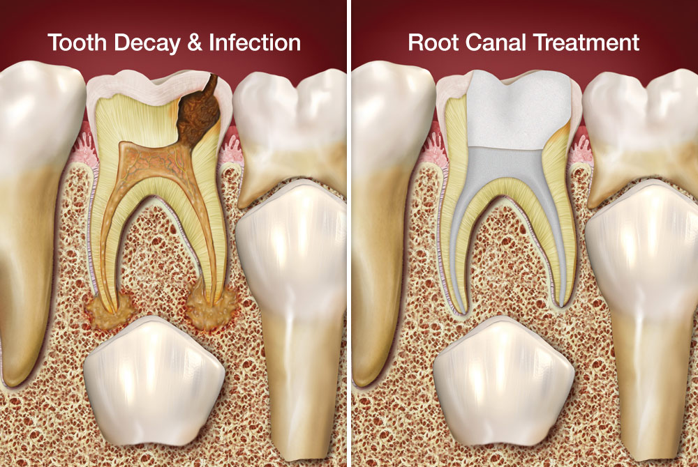 root canal treatment on baby teeth