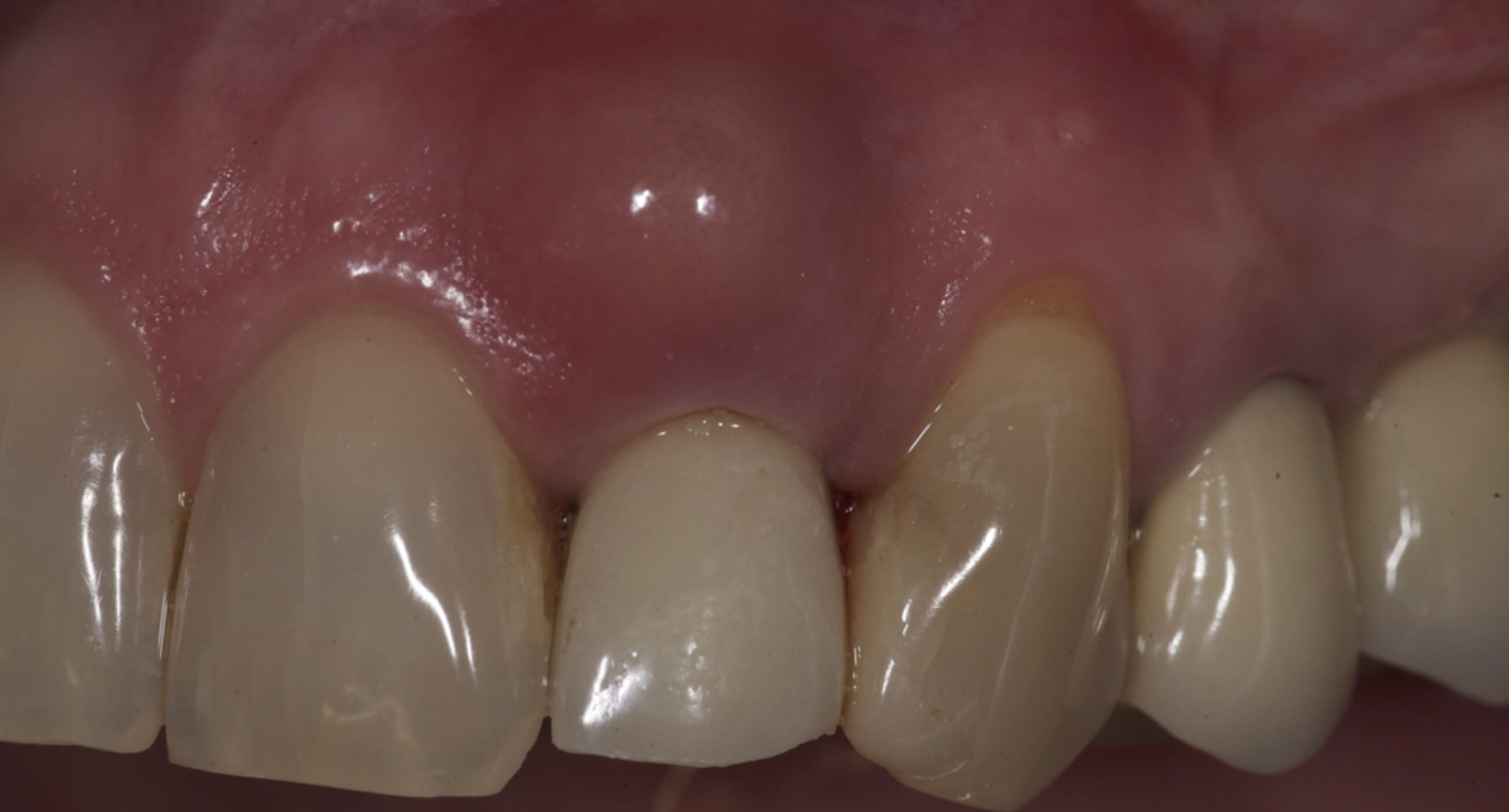 What Is Dental Granuloma News Dentagama