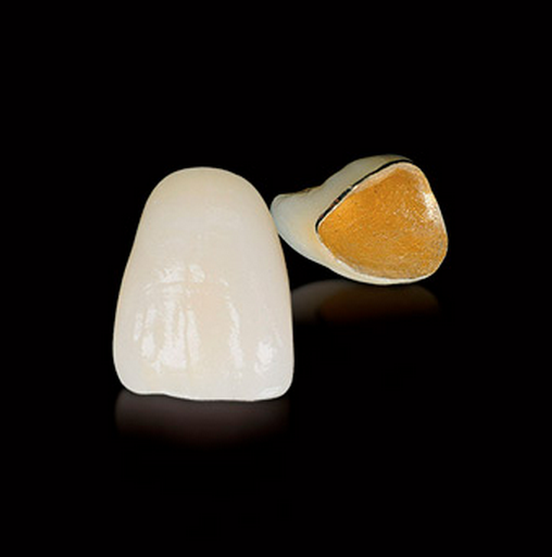 What Is A Porcelain Fused To Gold PFG Dental Crown