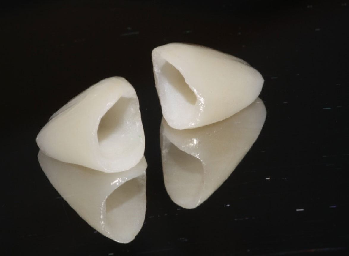 What is a porcelain fused to zirconia (PFZ) dental crown ...
