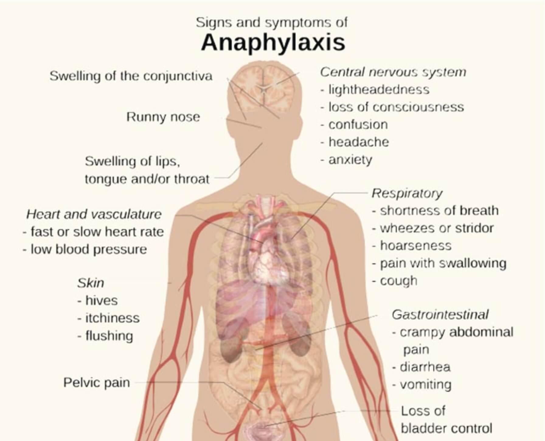 Anaphylactic shock   News   DentagamaDentaGama