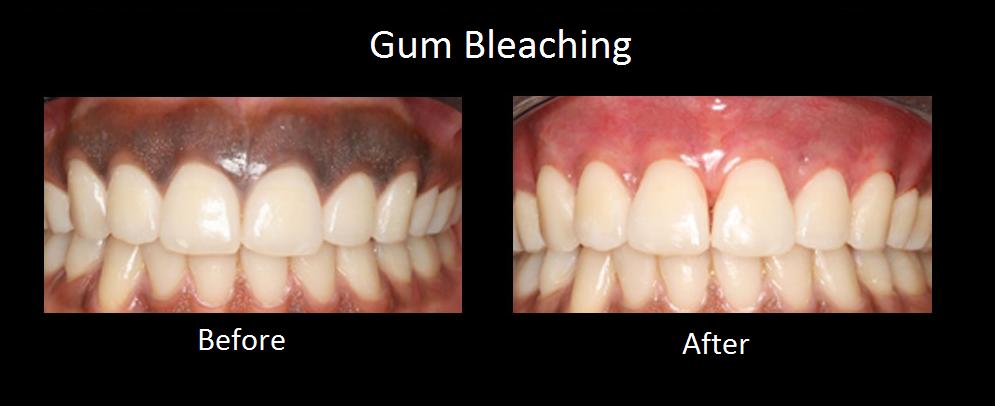 Gum Bleaching News Dentagama