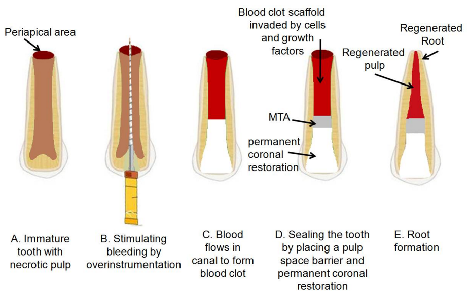 assisting with an endodontic procedure Root canal files : are surgical instruments used by dentists when performing root canal treatment these tools are particularly used to clean and shape the root canal, with the concept being to perform complete chemomechanical debridement of the root canal to the length of the apical foramen.