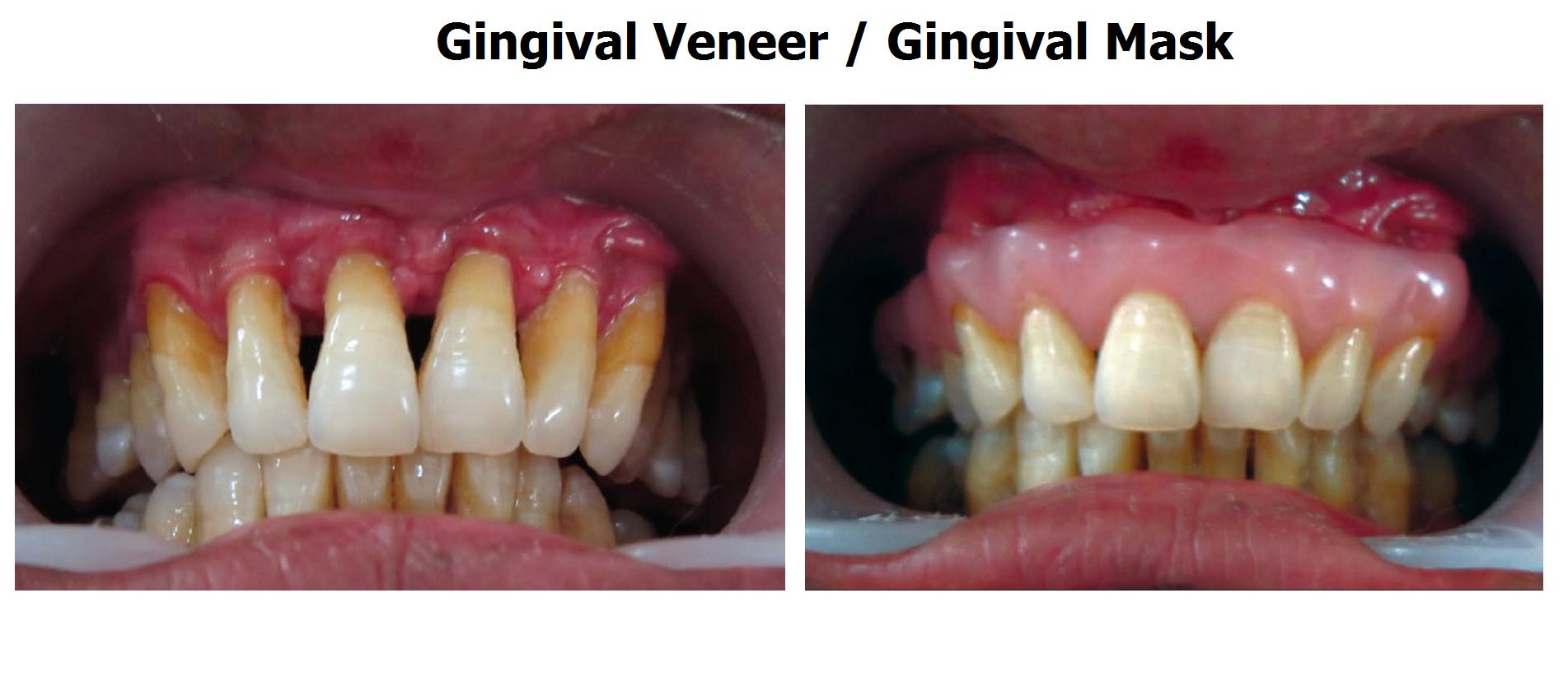 Gum Disease Treatment At Home Gum Disease Charlbury