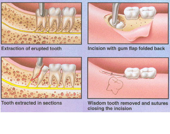 Wisdom Tooth Removal After Wisdom teeth removal |...