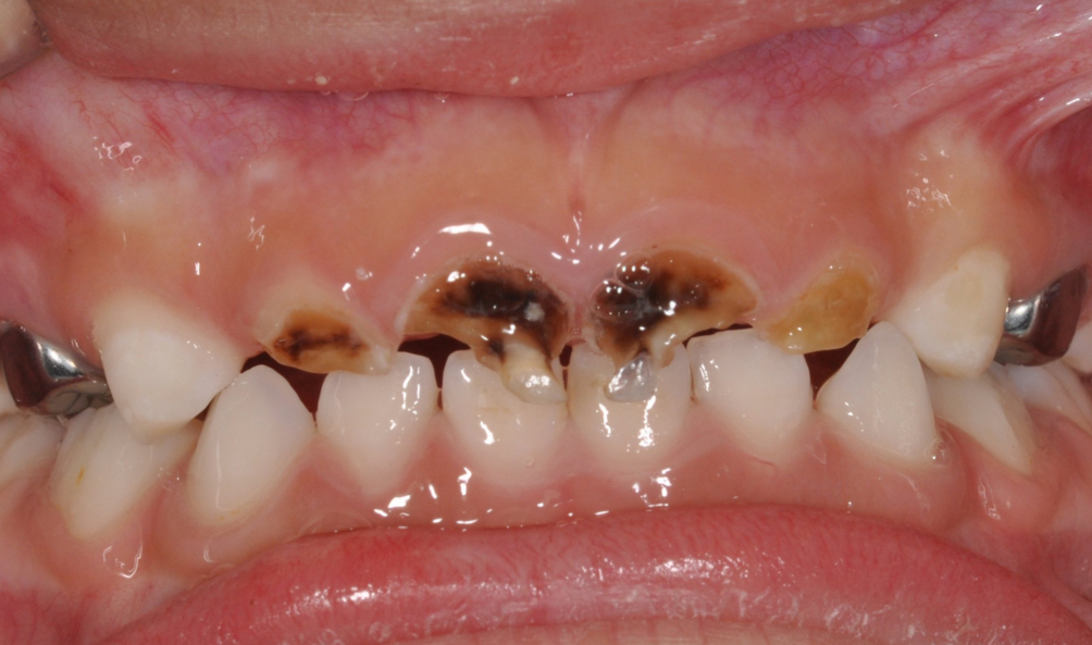 What Is Baby Bottle Tooth Decay News Dentagama