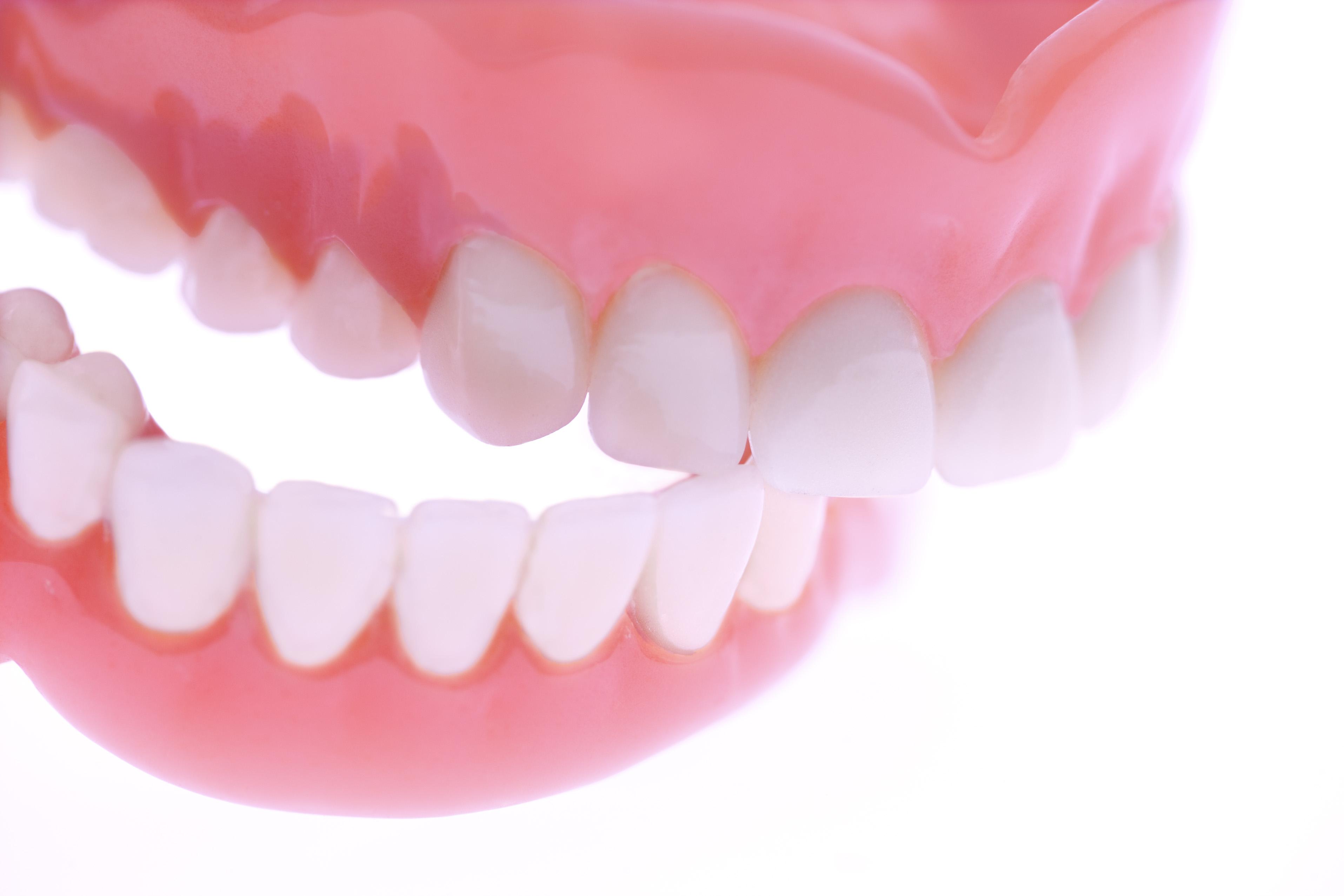 снимается картинки про вставные зубы гостиница