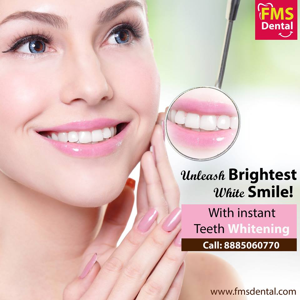 Teeth Whitening Treatment Cost In India Fms Dental Hospital