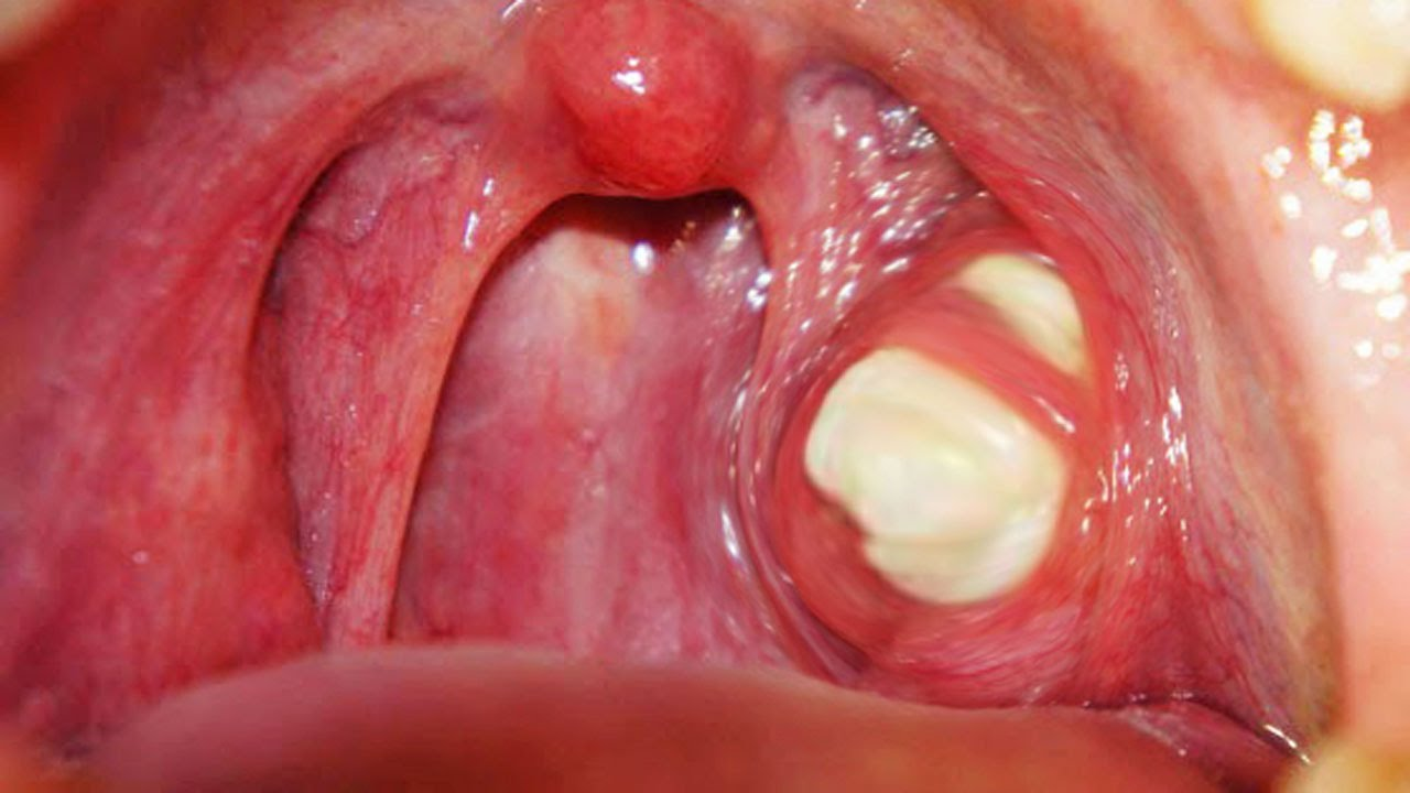 What are tonsil stones or tonsilloliths? | News | Dentagama