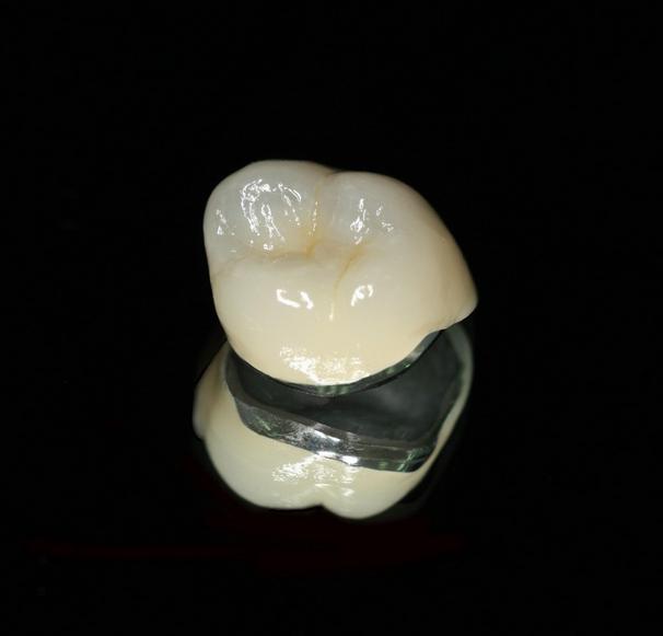 What is a PFM dental crown? | News | Dentagama