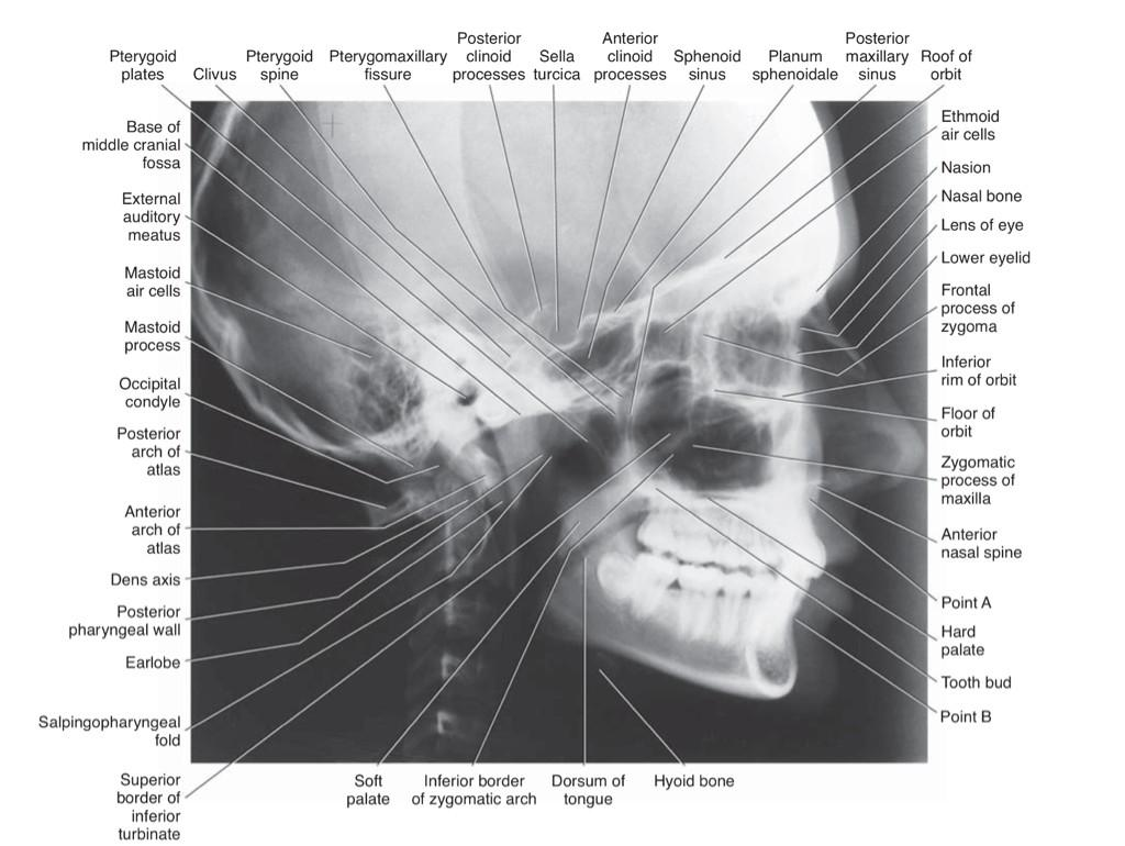 cephalometric analysis news dentagama cephalometric analysis