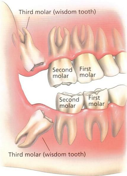 Is It Safe To Have All Four Wisdom Teeth Removed At Once