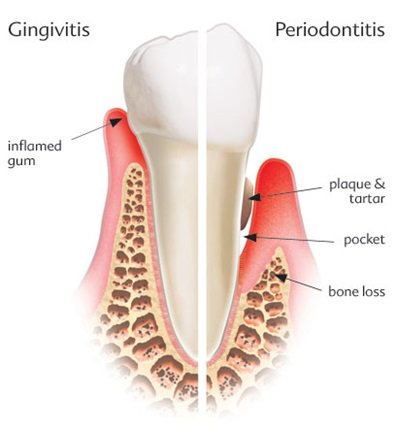 difference between gingivitis and periodontitis pdf