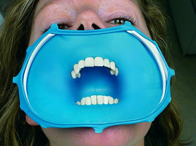 What Is A Latex Dental Dam 49