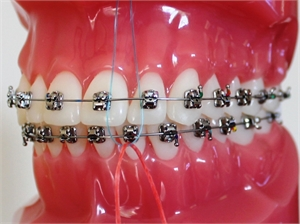 Cleaning braces with floss threader