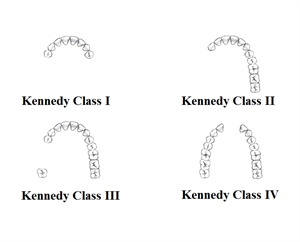 Kennedy Classification