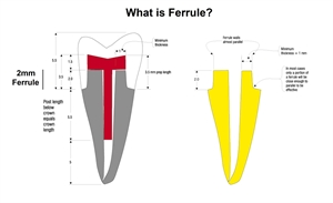 Tooth ferrule and its dimensions. Dental ferrule and the corresponding tooth tissues and core build-up.