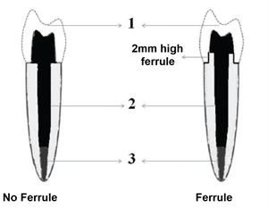 Crown preparation with and without ferrule