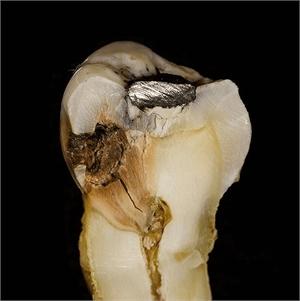 This is how dental decay (tooth caries) looks
