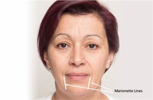 Facial Marionette Lines