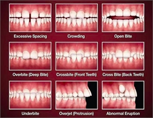 Types of Malocllusion - teeth spacing, crowding, open bite, overbite, crossbite, underbite, overjet and abnormal tooth eruption