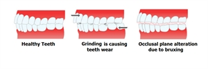 Bruxing is causing teeth wear