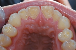 Teeth grinding causes occlusal teeth wear facets.