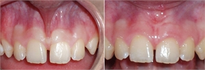 Frenectomy is removal of the frenulum. Pictures - before and after frenectomy procedure
