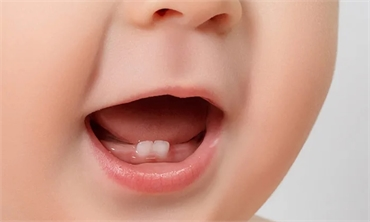 4 Ways To Keep Your Child Free from Dental Problems
