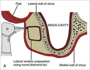 What is antrostomy procedure during lateral sinus lift?