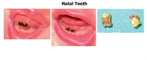 The difference between natal and neonatal teeth