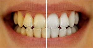 Reasons for tooth discoloration