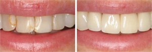 White fillings can go dark with age. Replacing them will give your the smile you have always wanted.