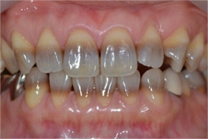 Tetracycline staining on teeth. Some medications taken by the mother or the child during enamel formation can cause permanent spots on the teeth. Staining can be mild - white spots, moderate - yellow stains, or severe - dark brown areas on the teeth.