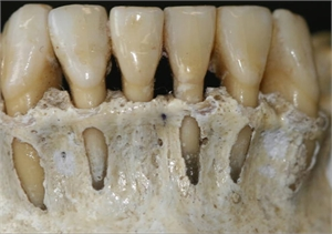 Dental fenestration is a window-like root exposure